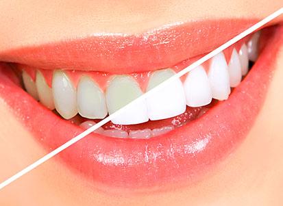 blanqueamiento dental clinica dental ibiza